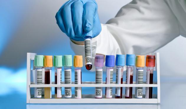 vous faire comprendre les résultats et les techniques d'analyses médicales
